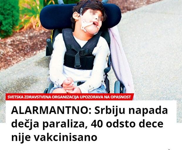 cerebralna-paraliza-2